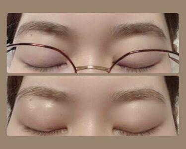 脱色クリーム敏感肌用/エピラット/脱毛・除毛を使ったクチコミ(1枚目)
