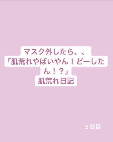 桂枝茯苓丸加ヨクイニン(医薬品)/ツムラ/その他を使ったクチコミ(1枚目)