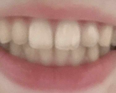 ポリリンキューブ  速攻美白/ミュゼホワイトニング/歯磨き粉を使ったクチコミ(3枚目)