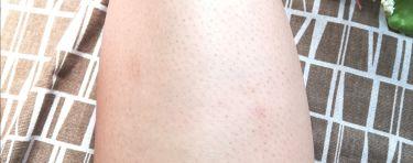 ベレーザブラジレイラ ブラックシュガーワックス/マニス/脱毛・除毛を使ったクチコミ(3枚目)