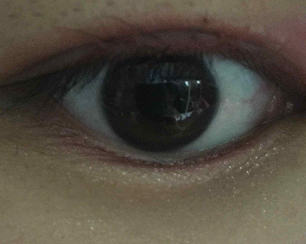 だけ 目 片目 つり