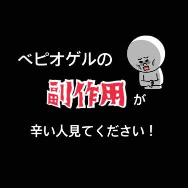 ベピオゲル(医薬品)/その他を使ったクチコミ(1枚目)