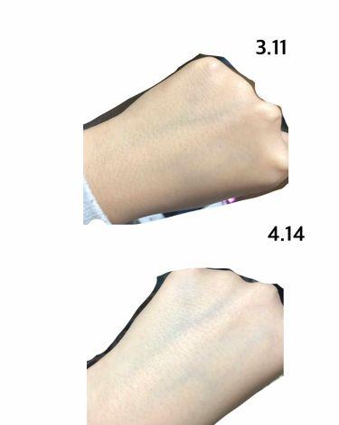 永瀬さんの「メンソレータム メラノCC薬用しみ集中対策液<美容液>」を含むクチコミ