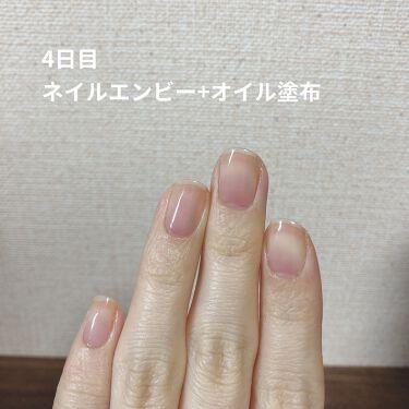 【画像付きクチコミ】〜爪の育成始めます〜前回の爪の投稿の時はかなりコンディションのいい爪だったのですが、、、、、年末に短く切ったところ爪にダメージがいったみたいで、アルコールでのダメージもあってみるみるうちにボロボロに、、、😱😱😱すぐ二枚爪になるし割れる...