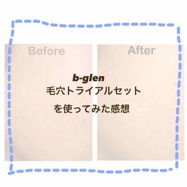 毛穴ケア トライアルセット/b.glen/トライアルキットを使ったクチコミ(1枚目)