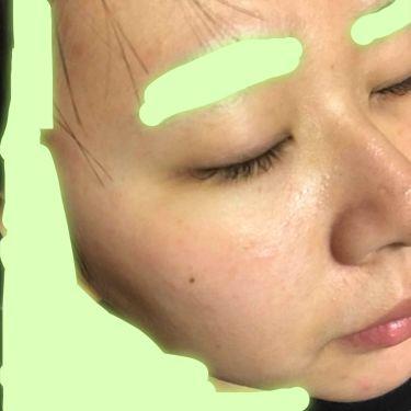 薬用アクネ ウォッシュ/クレンジングリサーチ/洗顔フォームを使ったクチコミ(3枚目)