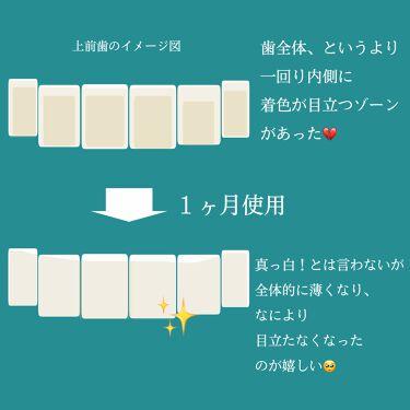 アパガードプレミオ/アパガード/歯磨き粉を使ったクチコミ(3枚目)
