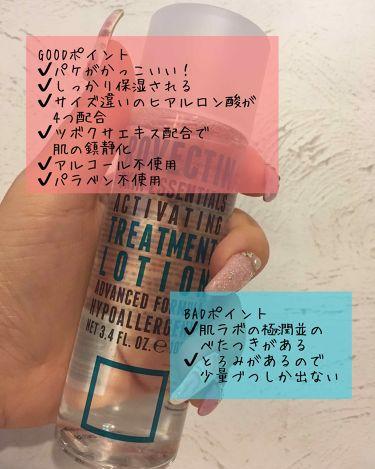 エッセンシャル トリートメントローション/ロベクチン/化粧水を使ったクチコミ(2枚目)