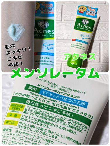 薬用毛穴すっきり粒つぶ洗顔/メンソレータム アクネス/洗顔フォームを使ったクチコミ(1枚目)