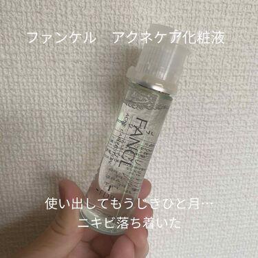 ファンケルアクネケア 化粧液