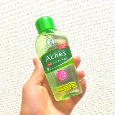 薬用モイスチャー化粧水/メンソレータム アクネス/化粧水 by りんりん💓