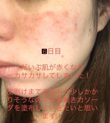加香ひまし油(医薬品)/日本薬局方/その他を使ったクチコミ(2枚目)