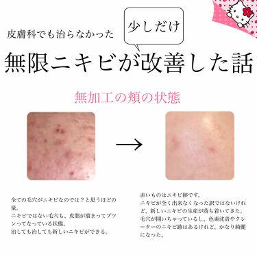 ピュアホワイト <タブレット>/資生堂ビューティーフーズ/美肌サプリメントを使ったクチコミ(1枚目)