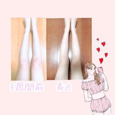 lily*。 on LIPS 「セリアで売っているマッサージ道具を使って独自の足👣痩せマッサー..」(2枚目)