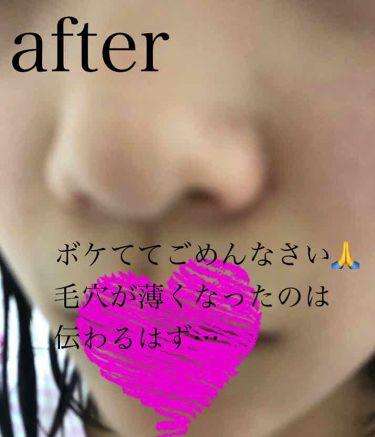 クレンジングフォーム ティーツリーケア/MEDIHEAL/洗顔フォームを使ったクチコミ(3枚目)