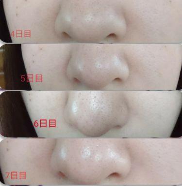 ドットウォッシー洗顔石鹸/ペリカン石鹸/洗顔石鹸を使ったクチコミ(3枚目)