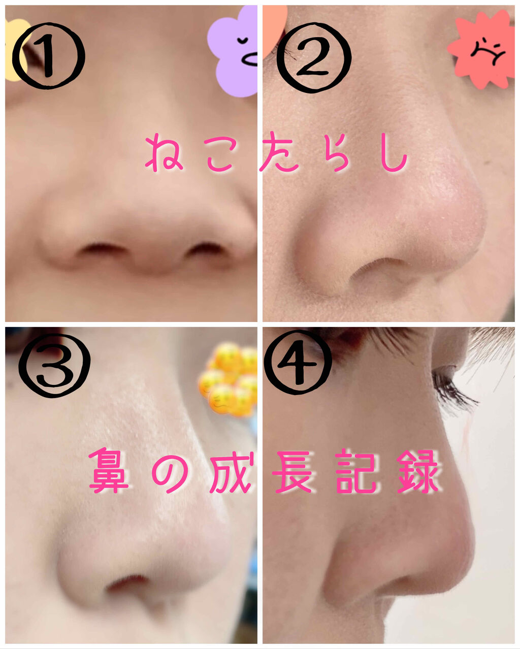 高く 鼻 器具 を する