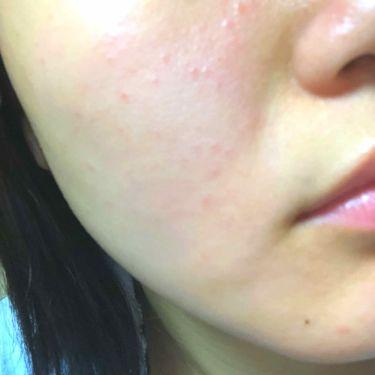 fabulous_blush_p1dさんの「ビオレマシュマロホイップ 薬用アクネケア<洗顔フォーム>」を含むクチコミ