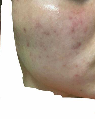 敏感肌用薬用美白美容液/無印良品/美容液を使ったクチコミ(2枚目)