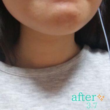 クリアウォッシュ/ORBIS/洗顔フォームを使ったクチコミ(3枚目)
