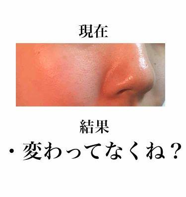 シーバム コントロール エッセンス EX/ALBION/美容液を使ったクチコミ(3枚目)