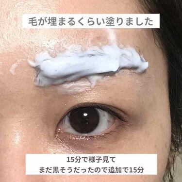 脱色クリーム敏感肌用/エピラット/脱毛・除毛を使ったクチコミ(4枚目)