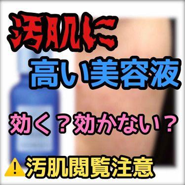 タカミスキンピール/タカミ/ゴマージュ・ピーリングを使ったクチコミ(1枚目)
