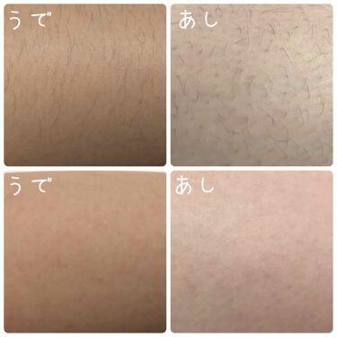 除毛クリームキット(トリートメントEX配合)/エピラット/脱毛・除毛を使ったクチコミ(3枚目)