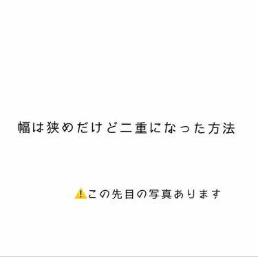 アイテープ/DAISO/その他を使ったクチコミ(1枚目)