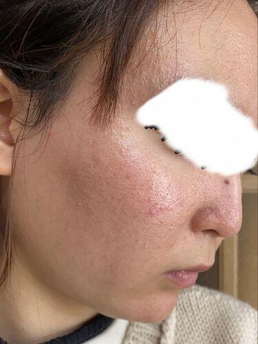 ている on LIPS 「やっぱにきびはこれが1番汚い肌の写真でます。集合体恐怖症などの..」(3枚目)