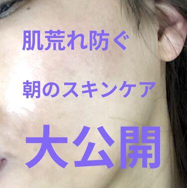 ザ 薬用ホワイトレスキュー/DUO/美容液を使ったクチコミ(1枚目)