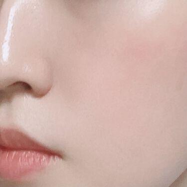 Skinable Essence/komame/美容液を使ったクチコミ(8枚目)
