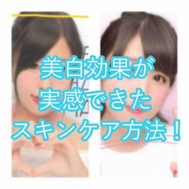 ダイソー 薬用美白化粧水/DAISO/化粧水を使ったクチコミ(1枚目)