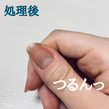 【画像付きクチコミ】甘皮処理、社会人になってからやってるのですがもっと早くやっときゃ良かったなって思ってます🌟爪噛み癖の人って2種類いると思っていて1つは、爪本体をむしる人ともう1つは、爪の周りをむしって流血する人(と、両方する人)私は爪本体についてはや...