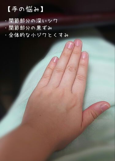 の 関節 黒ずみ 指 黒ずみができる原因とは?|クロキュア|小林製薬