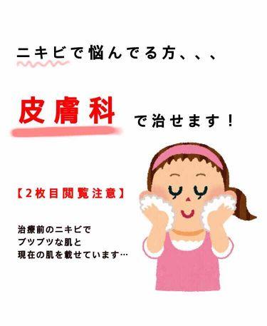 ビーソフテン ローション/持田製薬株式会社/その他スキンケアを使ったクチコミ(1枚目)