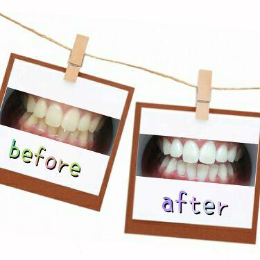 MARVIS/MARVIS/歯磨き粉を使ったクチコミ(4枚目)