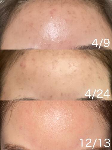 マイルド保湿洗顔フォーム/無印良品/洗顔フォームを使ったクチコミ(2枚目)