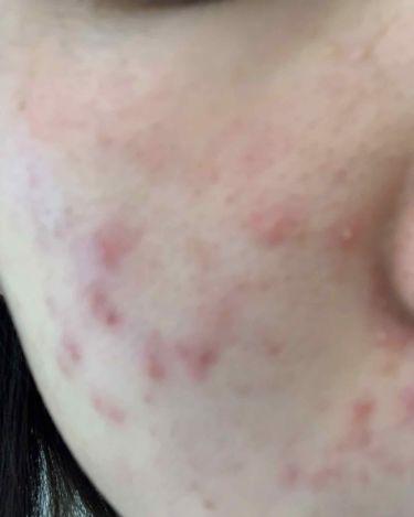 クロマイ-n軟膏 顔に塗る