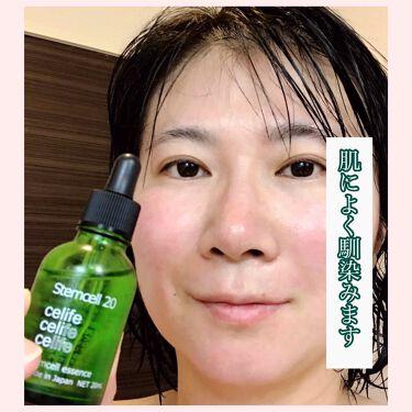 ヒト由来幹細胞美容液 ステムセル20/Celife/美容液を使ったクチコミ(3枚目)