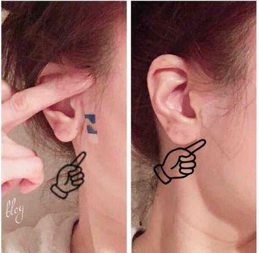白ゆり@美容ブロガー on LIPS 「たった5秒!貼るだけで小顔になれると韓国で話題になっていたヨウ..」(3枚目)