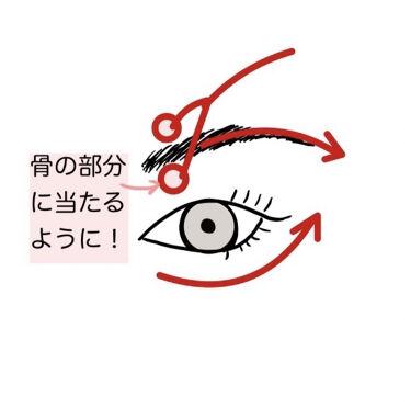 【画像付きクチコミ】【私が二重になった方法】長くなりますが、二重になりたい方はぜひ!読んでみてください🙇♀️🙇♀️✼••┈┈••✼••┈┈••✼••┈┈••✼••┈┈••✼私はもともと、左目が二重、右目は一重と左右非対称のまぶたでした🥺写真を撮った時...