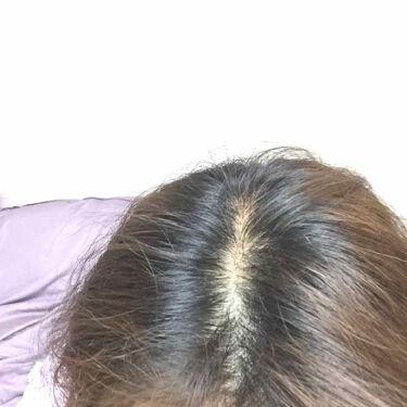 泡カラー/リーゼ プリティア/ヘアカラー・白髪染め・ブリーチを使ったクチコミ(2枚目)