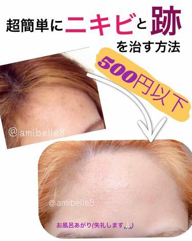 薬用洗顔フォーム/スキンライフ/洗顔フォームを使ったクチコミ(1枚目)