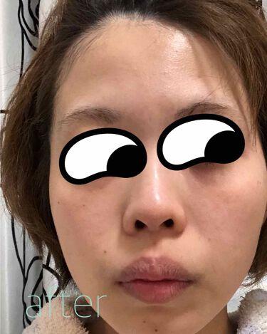 もこもこ白泡マスク/LITS/洗い流すパック・マスクを使ったクチコミ(3枚目)