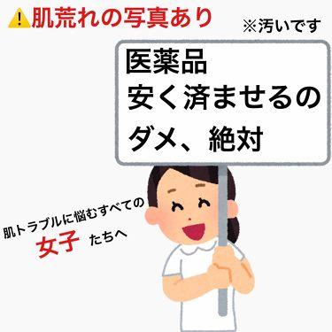 ニキビ治療薬クリーム /クレアラシル/その他を使ったクチコミ(1枚目)