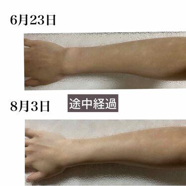 エル システイン 効果 肌の代謝とL-システイン   ハイチオール【エスエス製薬】