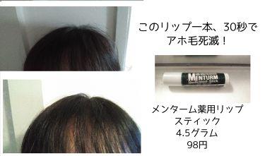 メンターム薬用スティック/近江兄弟社/リップケア・リップクリームを使ったクチコミ(2枚目)