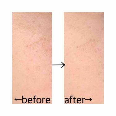 【画像付きクチコミ】カバー力はそこそこあります。毛穴が塞がって、アプリで加工したみたいな肌になり、感動しました!ケースも可愛いです。#セザンヌ#パウダー