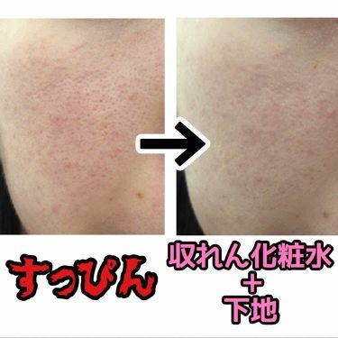オードルックス(アストリンゼントマイルド) N/ドルックス/化粧水を使ったクチコミ(3枚目)